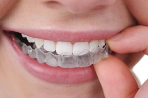 Invisalign Myths Brookfield WI