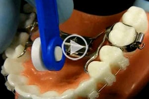 Palatal Expander Video at Race Orthodontics in Brookfield Mukwonago WI