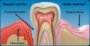 Gum Disease Brookfield WI
