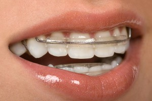 Wearing orthodontic retainers-Brookfield WI
